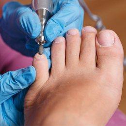 Tratamiento quiropodología